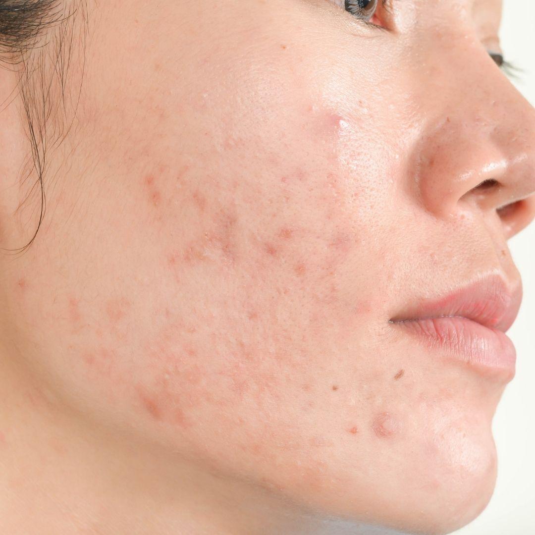 Acne Scars Treatments
